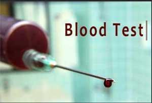 Blood test to detect brain metastases while still treatable
