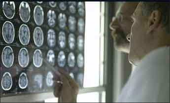 Does widespread pain stem from the brain? MRI study investigates