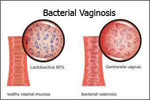 CDC's STD Treatment Guidelines -Bacterial Vaginosis