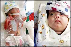 Meet  India's Miracle baby smallest and youngest