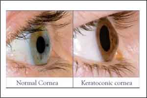 Oral corticosteroid supplementation improves clinical outcomes of isolated corneal bee sting injury