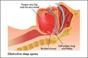New cost-effective imaging to assess risk of  Obstrucive Sleep Apnea