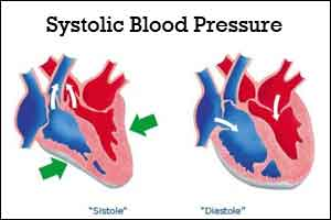 Systolic blood pressure a useful  prognostic indicator before PPCI : Study