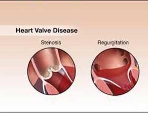 Lowering BP cuts down risk of Valvular Heart Disease: JAMA
