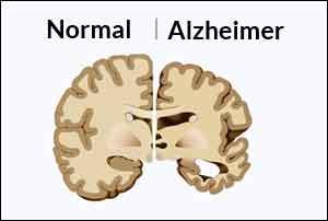Alzheimer's disease biomarker identified across test sites