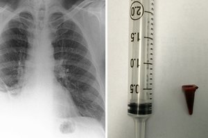 A Suspected Case of bronchial carcinoma Turns Out to Be an Inhaled Toy