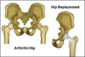 'Dual mobility' hip replacement  implant has less risk of dislocation : Study