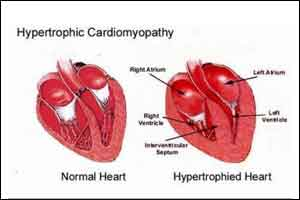 Worse Survival for Women With Hypertrophic Cardiomyopathy