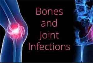 Oralantibiotics as good as intravenous in complex bone infections: NEJM