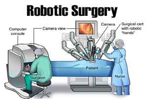 New web-based program to monitor experience of operating surgeon in robotic surgeries