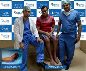 Clubfoot deformity finds cure even  at  age of 25 years