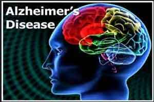 Ideal biomarker detects Alzheimer disease before the onset of symptoms
