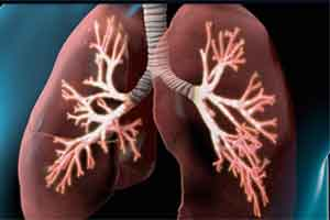 COPD patients on long-term ICS have increased risk of bone fractures