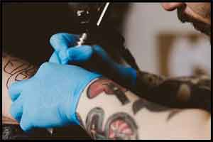 Delayed reaction to tattoo pigment may mimic lymphoma : Annals of Internal Medicine