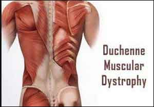 Risk Factors for Duchenne Muscular Dystrophy Identified
