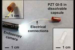 Flexible sensors can detect movement in GI tract
