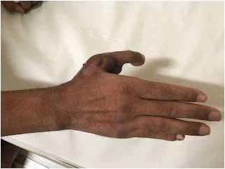Mumbai doctors successfully replace 35 yr old's lost thumb in an accident by grafting  toe