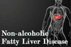 Endocrine Gastrointestinal hormone significantly improves symptoms of NAFLD