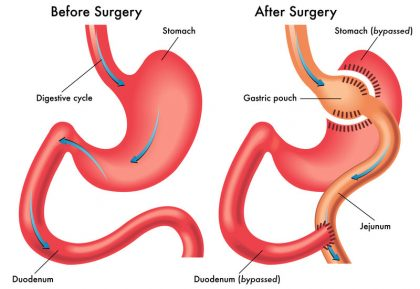 Perform cholecystectomy before gastric bypass surgery to prevent complications