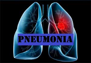 Community acquired pneumonia clinical guideline released by ATS/IDSA