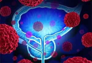 New diagnostic test to transform prostate cancer treatment