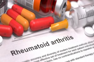 Tofacitinib monotherapy effective in rheumatoid arthritis after methotrexate withdrawal