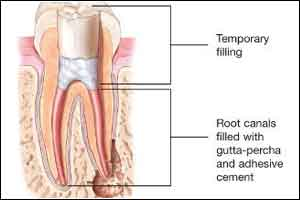 New Antimicrobial gel could improve root canal results