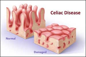 Celiac Disease diagnosis takes 3.5 years in patients who have no GI Symptoms : JAMA