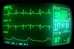 AHA updates practice standards for Inpatient ECG Monitoring
