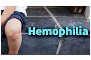 FDA approves new treatment to prevent bleeding in  patients of  hemophilia A