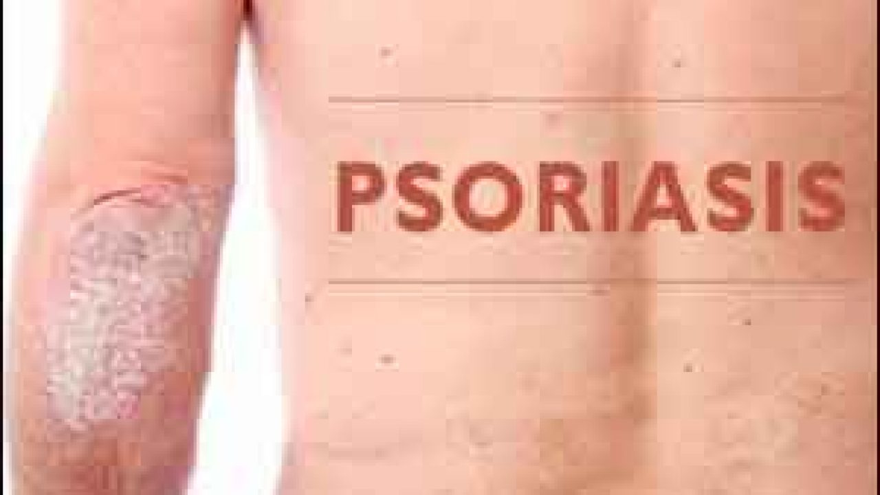 NICE Guidelines for Assessment and Management of Psoriasis