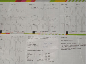 Silent Myocardial Infarction During Hypoglycemic Coma