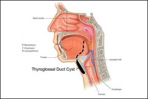 Thyroglossal Duct Cyst And Fistula – Standard Treatment Guidelines