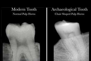 A simple dental X-ray may  reveal Vitamin D deficiency