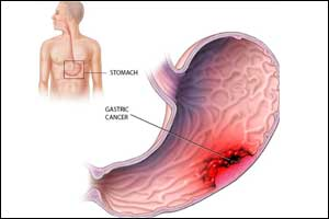 How Helicobacter pylori causes gastric cancer