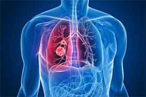 FDA approves imfinzi (durvalumab) for unresectable stage III non-small cell lung cancer