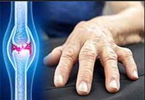 Ultrasound may differentiate between major types of Arthritis
