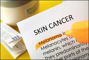 New drug combination found more effective against melanoma