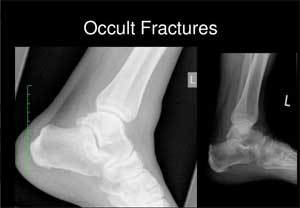 Sonographic Diagnosis of occult fractures