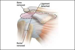 Arthroscopy not found beneficial in subacromial shoulder pain