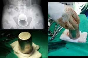 Satna: Doctors recover steel glass from patient's stomach
