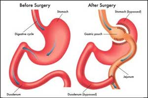 DSS & Diabetes UK  Guidelines  for Metabolic surgery in treatment of Type 2 diabetes