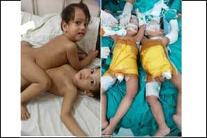Mumbai conjoined twins separated after 12 hrs surgery by 20 doctors