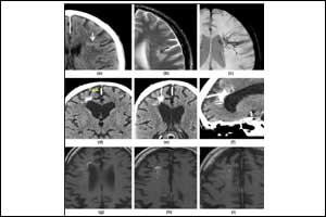 Some Neuroanatomical Variants usually misinterpreted radiologically