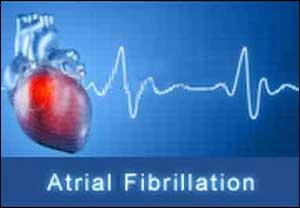 atrial fibrillation01 - Atopic dermatitis patients are at increased long-term risk for AF