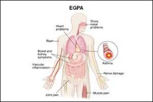 FDA approves first drug for Eosinophilic Granulomatosis with Polyangiitis ( Churg-Strauss Syndrome)