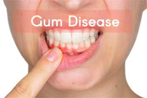 Gum infection ups the risk for dementia