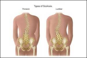 Scoliosis linked to essential mineral Manganese