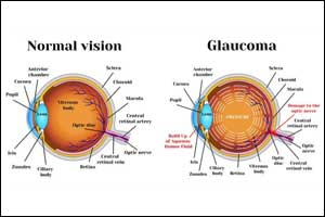New glaucoma drugs cause effective & lasting reduction in IOP