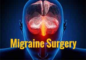 Migraine surgery produces dramatic improvements in functioning : Study